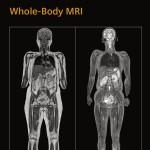 Whole-Body MRI