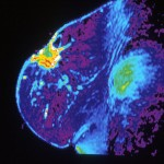 Mri_of_breast