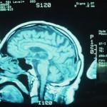 brain-mri-alzheimer
