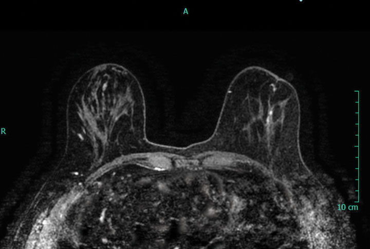 Abbreviated Breast MRI May Be Additional Screening Option